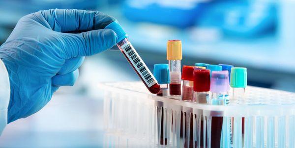 Teste para coronavírus no ES vai ter resultado no mesmo dia | A Gazeta