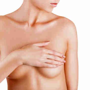 Mulher cobrindo os seios: estudo de câncer de mama reacende debate sobre quando iniciar mamografias periódicas