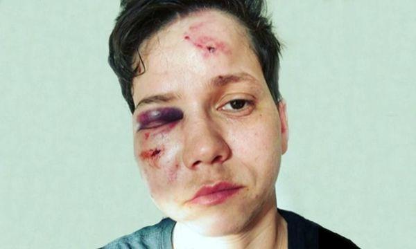 A youtuber Karol Eller teve o rosto bem machucado após ataque. Crédito: Reprodução