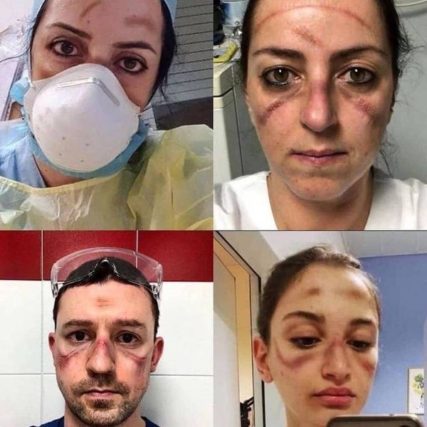 Coronavírus: Médicos com rostos marcados por máscaras apertadas
