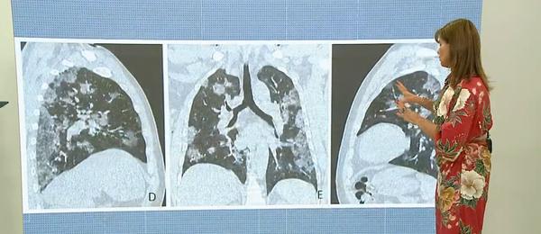 A médica pneumologista Cilea Martins explica os impactos da Covid-19 nos pulmões