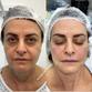 Antes e depois de uma das pacientes do Instituto Gasperazzo que fez o Lipogems. Crédito: Divulgação
