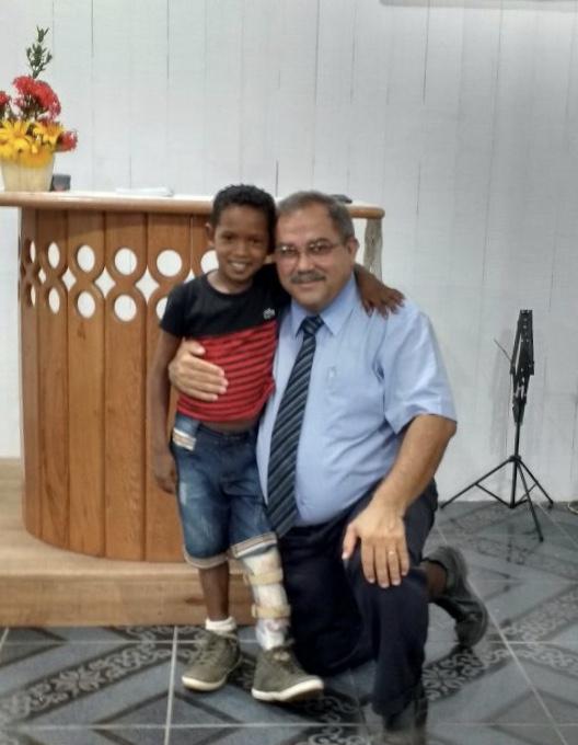 Jhonildo dos Santos, de 11 anos, foi atendido pelos médicos da Missão Amazônica. O menino, que não conseguia andar, ganhou uma ortoprótese que transformou a vida dele