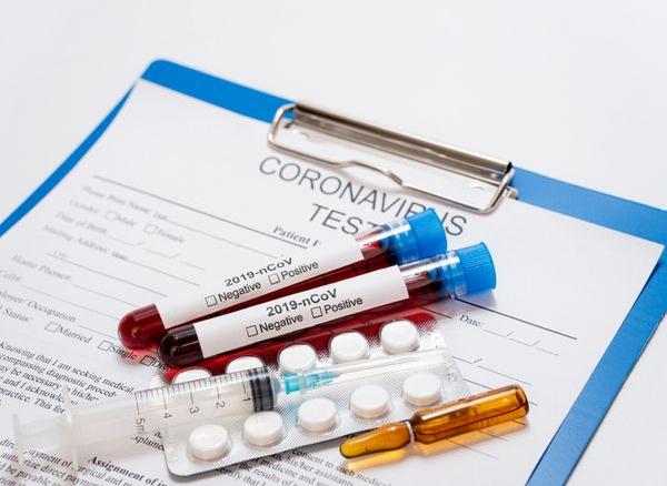 Laboratório faz testes para infecção de coronavírus
